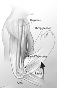 Distal Biceps Function Figure